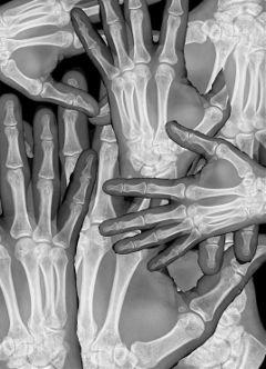 hand skeletal xray blackandwhite